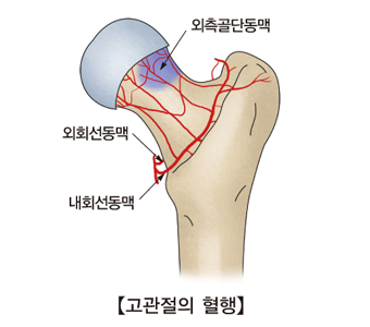 고관절의 혈행과 외측골단동맥 외회선동맥 내회선동맥의 위치