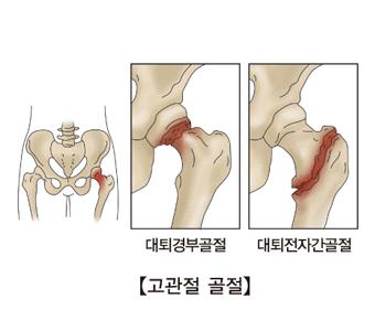 고관절 골절과 대퇴경부골절 대퇴전자간골전 사진 예시