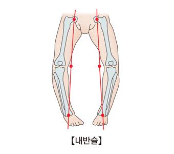 다리의변형을 일으킨 사진예시(오형다리)