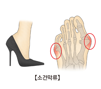 하이힐을신고있는여성의다리와 새끼발가락의 뿌리 관절이 엄지발가락 쪽으로 휘면서 튀어나온 발의해부도