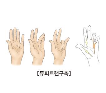 네번째 다섯번째 손가락쪽 손바닥에함몰이생김,손바닥에서손가락으로연결띠가생김,네번째 다섯번째손가락이 구부러져서 펴지지 않음, 손가락 인대해부도 사진예시