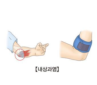 팔꿈치 안쪽의 인대의모습과 팔꿈치안쪽에 보호대를 착용하고있음