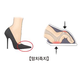 하이힐을신은 여성의 다리모습과 하이힐안의 구부러진 발가락 모습