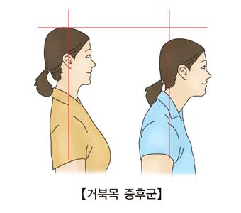 거북목증후군에걸린여성과 정상인의 여성