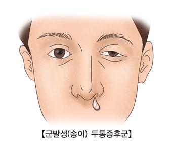 군발성(송이) 두통증후군-왼쪽눈이 부어있는 남성이 콧물을 흘리고 있음