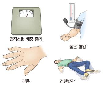 임신중독증의 증상-갑작스런 체중증가,높은혈압(고혈압),부종,경련발작