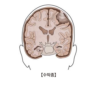 수막종-수막정에 걸린 뇌의 단면도 그림 예시