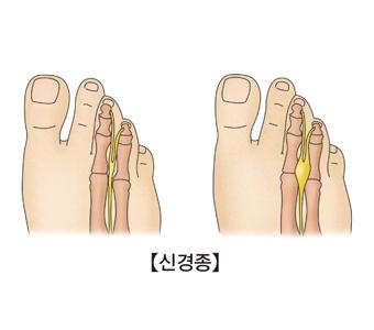 신경종-정상적인발의 해부도와 신경종에 걸린 발의 해부도 그림 예시