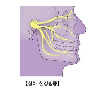 삼차 신경병증-삼차신경통의 통증 방향