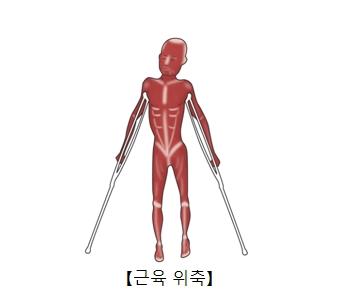 근육위축으로인해 목발에 유지하고 있음