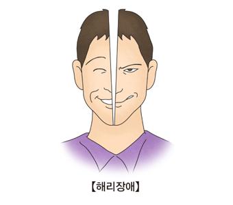 해리장애- 한쪽은 웃고있지만 다른 한쪽은 비웃고있는 모습