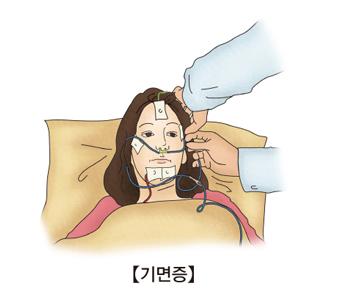 기면증-기면증검사를 받고있는 여성