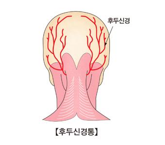 후두신경통-후두신경 모습 예시