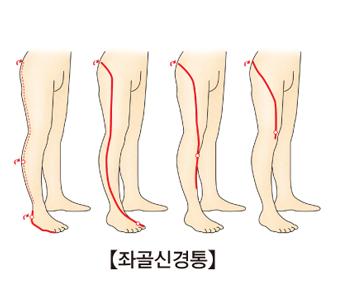 좌골신경통의 통증 위치