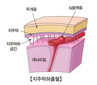 지주막하출혈-대뇌피질,지주막하공간,지주막,두개골,뇌동맥류위치