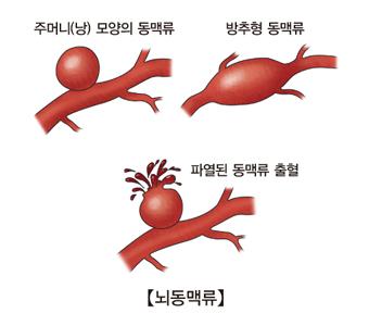 뇌동맥류-주머니(낭)모양의동맥류,방추형동맥류,파열된동맥류출혈 그림예시