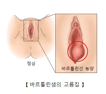 바르톨린샘의 고름집-정상여성의 성기와  바르톨린선 농양으로 염증이 발병된 여성의 성기