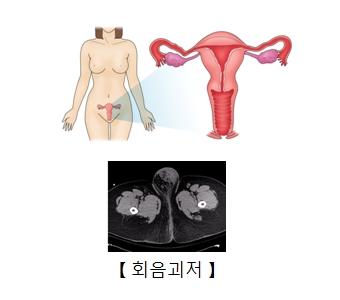 여성의 자궁속 모습 및 회음괴저의 예시