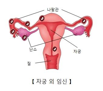 자궁 외 임심- 질,난소,자궁,나팔괸의 위치와 자궁외 임신할수 있는 위치