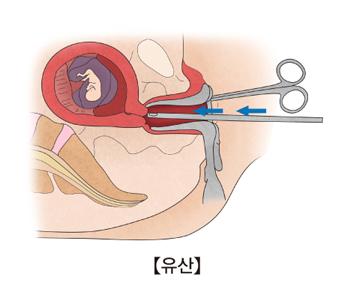 유산-소파술로 태아와 부속물을 긁어내고 있음