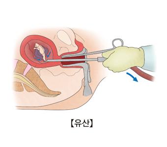 유산-수일에서 수 주동안 사망한 임신산물을 빼고 있는 모습 예시