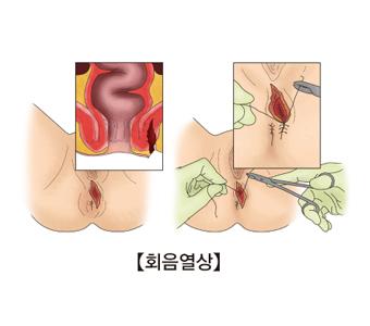 회음열상-회음열상이 발병된 여성의 성기 그림 및 치료모습 예시