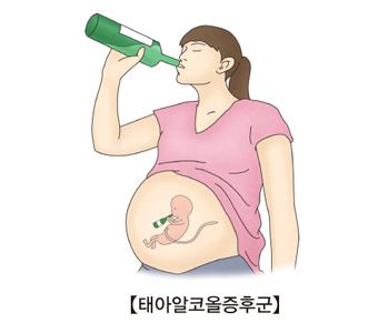 임신한 여성이 술을 마시고 있음(뱃속의 태아도 같이 술을마시고있음)