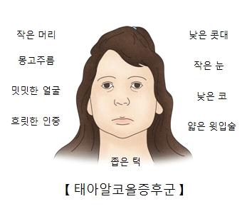 태아알코올증후군-작은머리,몽고주름,밋밋한얼굴,흐릿한인증,좁은턱,낮은콧대,작은눈,낮은코,얇은윗입술