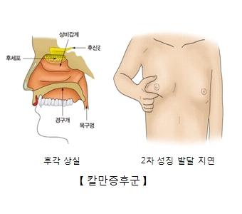 후세포 상비갑계 후신경 목구멍 경구개의 위치 및 후각상실 2차성징발달지연의 원인인 칼만증후군의 예시