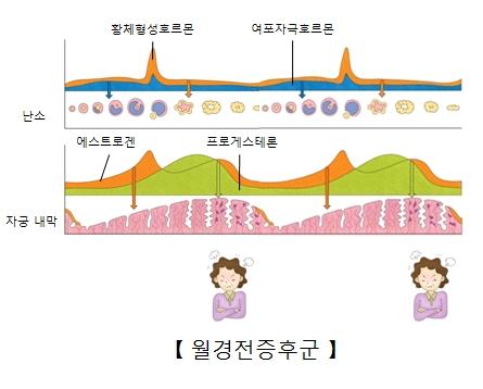 월경전증후군-난소안의 황체형성호르몬과 여포자극호르몬 분비량,자궁내막의 에스트로겐과 프로게스테론의 분비량