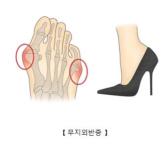 무지외반증에 걸린 발가락해부도와 높은구두(하이힐)을 신고있는 여성의다리