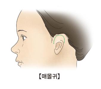 모양이 온전한 귀의 일부(윗쪽)가 피부밑에 묻혀있는 매몰귀 사진 예시