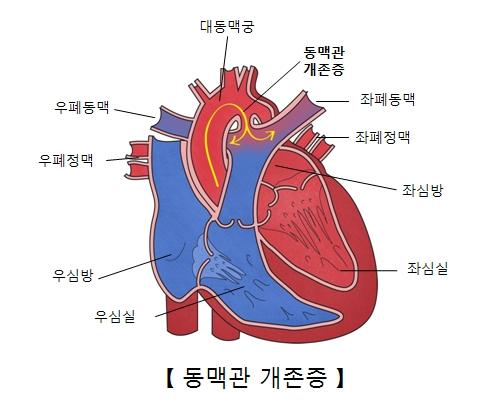 대동맥궁 동맥관개존증 좌폐동맥 좌폐정맥 좌심방 좌심실 우심실 우심방 우폐정맥 우폐동맥의 위치를 나타낸 동맥관 개존증의 예시