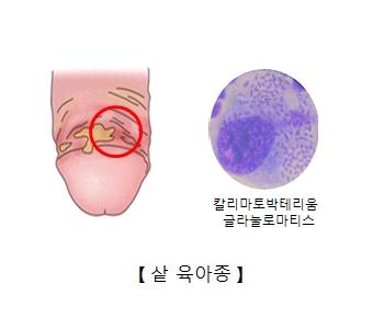 남성의성기에생긴 염증과 칼리마토박테리움 글라눌로마티스 세균