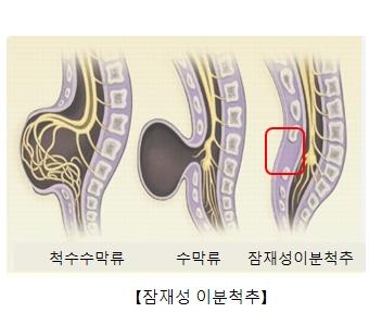 척수수막류 수막류 잠재성이분척추등 잠재성이분척추의 대한 예시