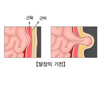 근육과 근막의 위치및 탈장의 기전의 예시