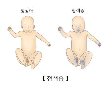 정상아 와 청색증을 가진 유아의 차이점 예시