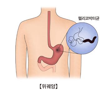 헬리코박터균으로 위궤양이 발생되는 예시