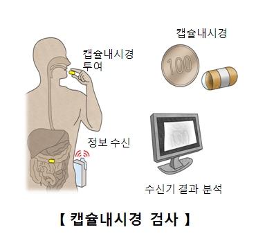 캡슐내시경 캡슐내시경을 투여 정보수신 수신기 결과분석등 캡슐내시경 검사의 예시