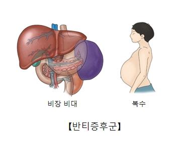 비장비대와 복수에 걸린 남성및 반티증후군의 예시