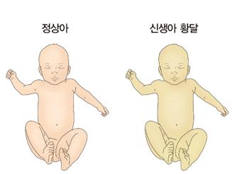 정상아와 황달이 발생한 신생아 황달의 차이점 예시