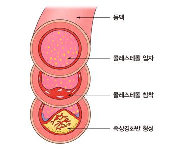 동맥안에 콜레스테롤입자모습,콜레스테롤침착모습,죽상경화반형성모습의 예시