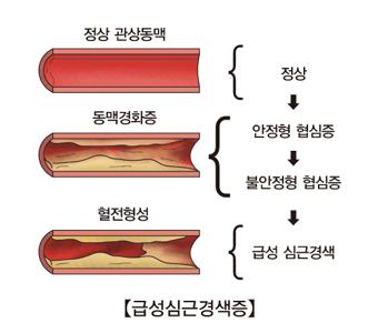 정상 관상동맥 동맥경화증 혈전형성은 정상 안정혈 협심증 불안정혈 협심증 급성 심근경색등의 순서로 발생되는 급성심근경색증의 예시