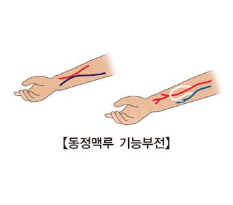 동정맥루 기능부전의 예시