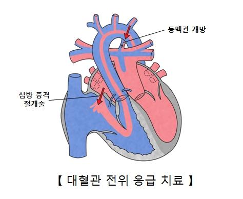 동맥관 개방 심방중격 절개술을 필요로 하는 대혈관 전위 응급치료의 예시