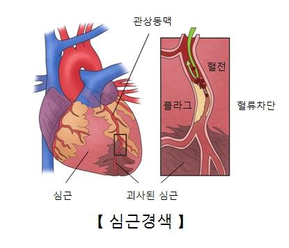 심근 관상동맥 괴사된 심근 혈전 플라그 혈류차단등 심근경색의 예시