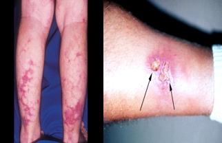 실제 다리쪽에 발생된 결절성 다발동맥염의 예시