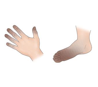 적색으로 색조변조를 일으킨 손과발