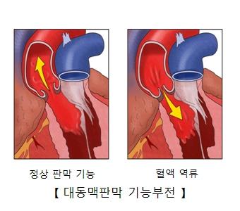 정상 판막 기능과 혈액 역류및 대동맥판막 기능부전의 예시