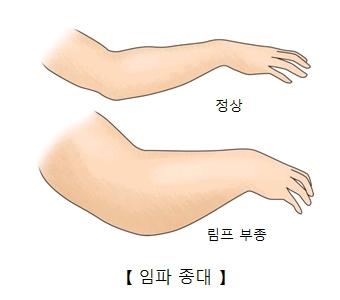 팔 정상부위와 림프부종에 걸린 차이및 임파종대의 예시